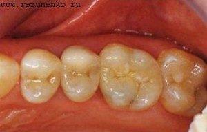 Восстановление зубов с помощью керамических вкладок в Днепропетровске