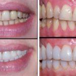 Восстановление зубов в Днепропетровске
