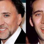 Николас Кейдж после восстановления зубов