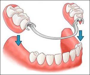 Бугель зубные протезы