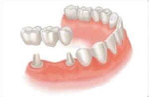 Зубные мостовидные протезы