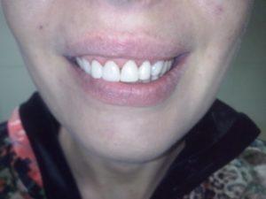 Эстетика зубного ряда
