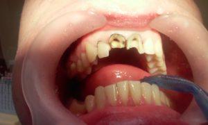Реставрация зубов в Днепре