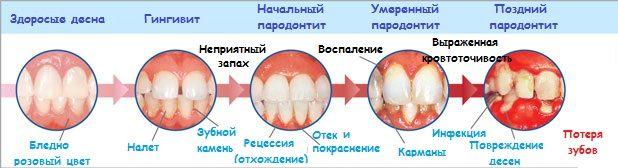 картинка почему могут выпасть зубы