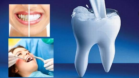 результат чистки зубов у стоматолога