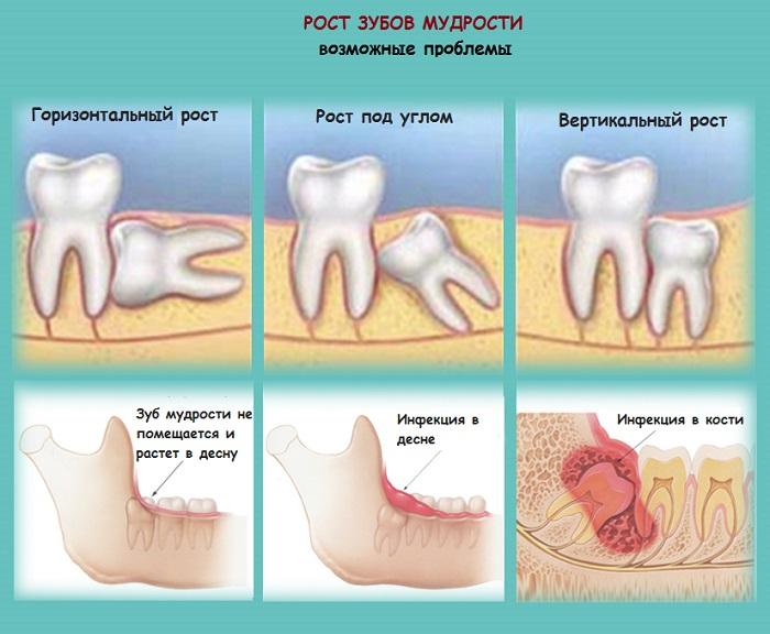 картинка о том как растет зуб мудрости