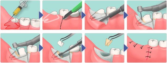 картинка процесса удаления зуба мудрости