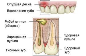 причины возникновения зубного флюса
